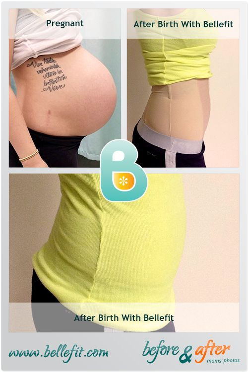 """""""Bellefit was especially great for pain management and support during recovery from my second c-section. I felt instant relief after putting it on in the early postpartum days. As I healed, the corset continued to provide my stomach with support as I became more active, as well as helped to close my diastasis recti, and aided in shrinking my postpartum stomach back into its pre-pregnancy shape. Now, at 7 weeks postpartum, I am back at my pre-pregnancy size and I still use my corset ..."""