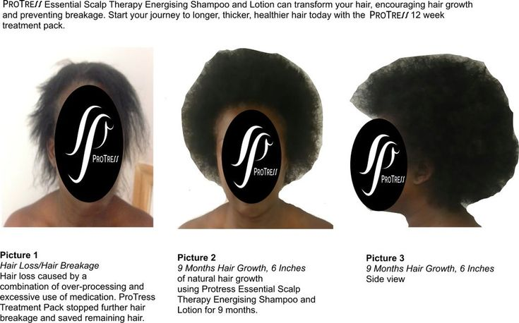 Protress hair care shampoo and lotion formulated for Afro hair encourages hair growth, prevents hair loss and strengthens weak thinning and fragile hair