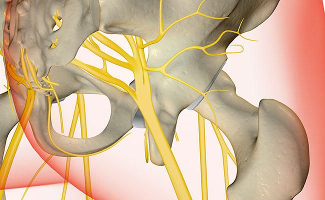 5 Ways To Tell If You Have Sciatica  http://www.prevention.com/health/sciatica-symptoms?cid=NL_PVNT_-_11052015_sciaticasymptoms_hd