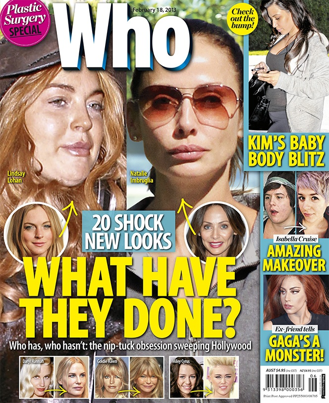 20 Shock New Looks: Stars Transformed By Surgery?