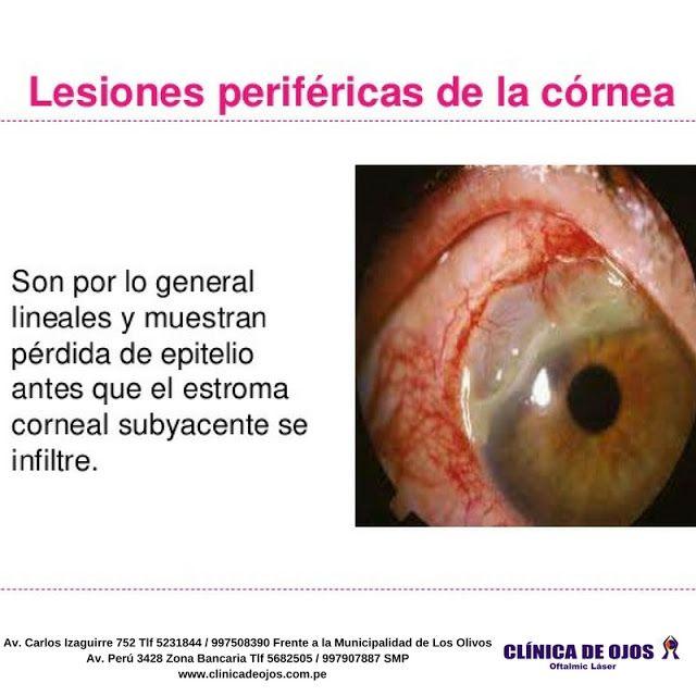 Clínica de Ojos Oftalmic Láser: LESIONES PERIFÉRICAS DE LA CÓRNEA