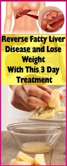 Reverse Fatty Liver Disease and Lose Weight With This 3 Day Treatment – Let's Tallk