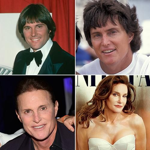 Caitlyn Jenner S New Face The Physical And Emotional