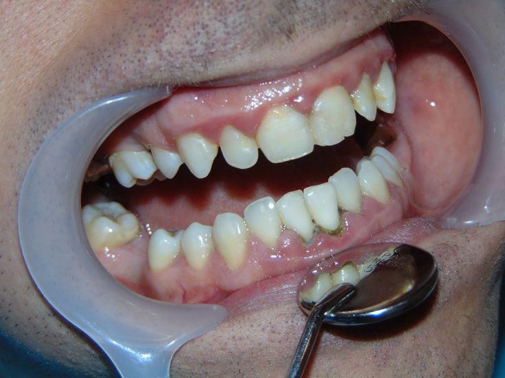 detartraj 02   dentist-who