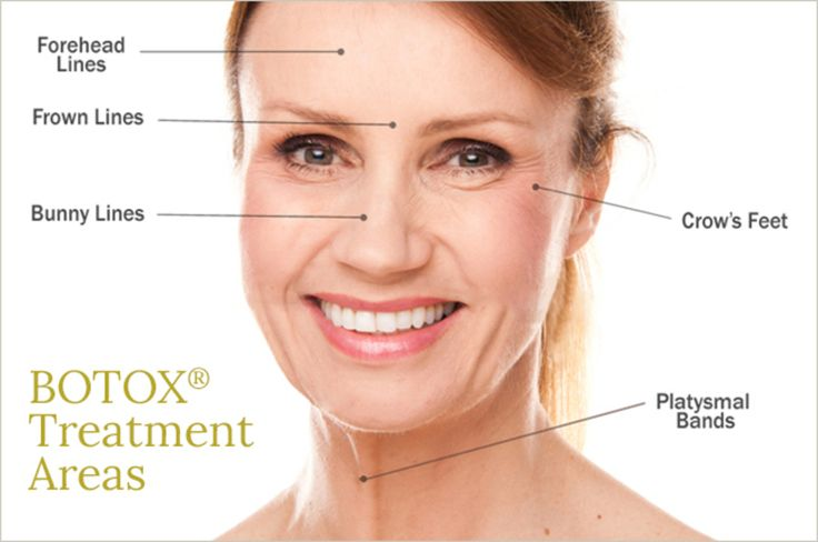 INCREDIBLE Offer From Dr. Sawyer! Our Best BOTOX® Offer and First Ever Evening Injection Event! Join us Thursday, November 17th for the best offer ever! We will be offering one time Botox pricing at $10 per unit on site at event and $11 per unit on call-in purchases if you cannot make it. $10/UNIT ON SITE AND $11/UNIT CALL-IN PURCHASE Dr. Sawyer will be injecting at this event AND you can bank some for later. Daytime Clinic: 12-3pm By Appointment Only ($10 per Unit purchase for that…