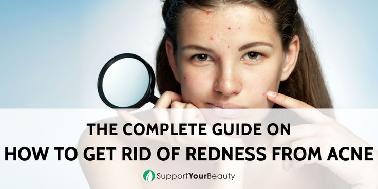 how to get rid of redness from acne scabs