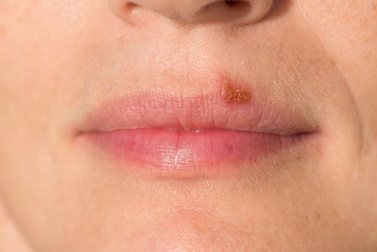 Sun blisters on lips can be irritating and a beauty disaster. Our hand picked solutions will help you get rid of it!