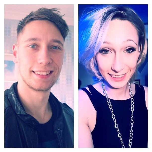 Transgender Before and After - New Health Advisor