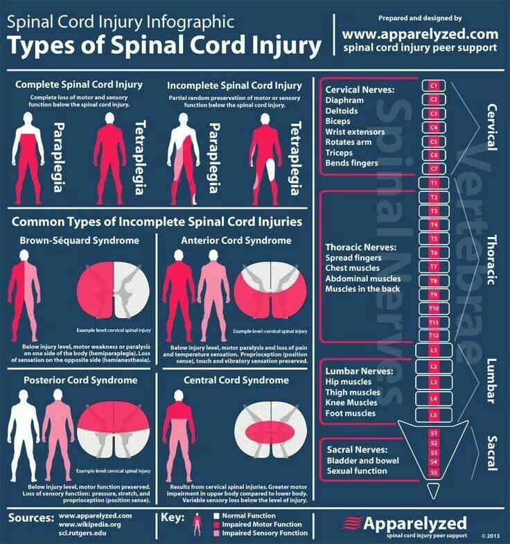 Spinal cord injury case