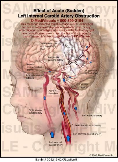 Internal Carotid Artery | Effect of Acute (Sudden) Left Internal Carotid Artery Obstruction ...