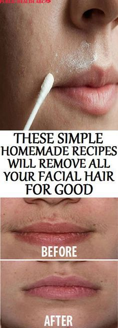 The facial hair isa big problem for many women. Women are constantly looking for some permanent solution that will help them to solve the problem with unwanted hair. There are many cosmetic treatments which cost