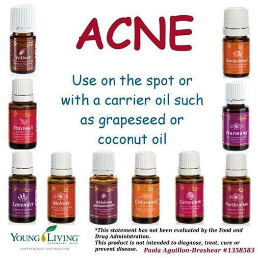 ESSENTIAL OIL FOR ACNE Depending on your skin type, you will need to experiment with the essential oils to see what works best for you. I have found that Eucalyptus works great on my skin. Always test the oil to see how your skin is going to react. Sometimes the essential oil will need to be mixed with a carrier oil. For me, coconut oil works great on my skin. Again, people have different skin types, and what works for me may not work for you. Don't be afraid to experiment.