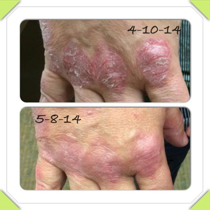 As I mentioned, central heating dries out the air inside the house, which is detrimental for psoriasis sufferers 2