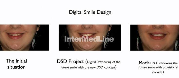 Cosmetic dental treatment Romania on Your Medical Tourism ,Facilitator Abroad - The Best Medical Tourism Solutions For You!  http://www.intermedline.com/ http://www.intermedline.com/wp-content/blogs.dir/1/files/dental-treatment-abroad-dental-clinical-cases-romania/800x600_1387034833_dental_clinical_cases_-_digital_smile_design.jpg #dental #dentistry #dentaltourism #medicaltourism