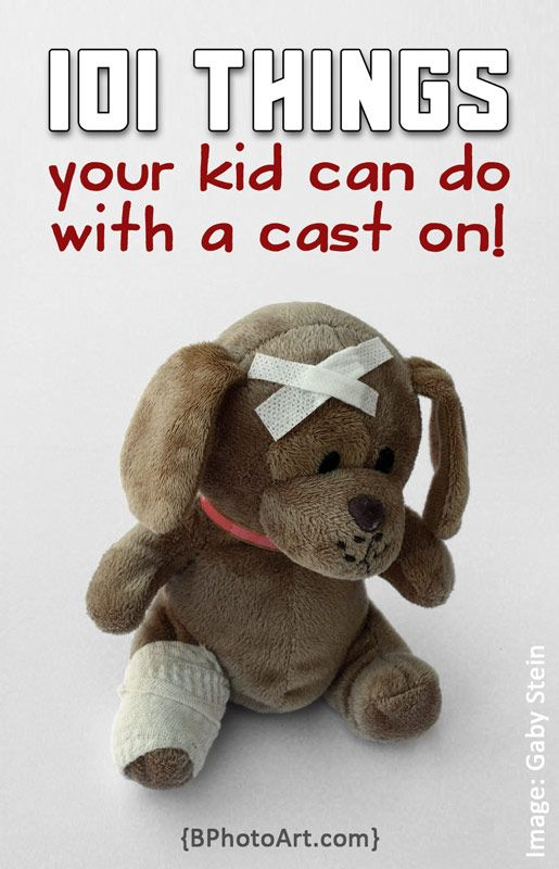 101 Things Your Kid Can Do With a Cast On. Creative ideas to have fun despite a cast. By @bphotoart