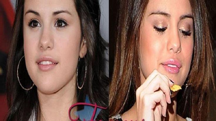 Celebrity Selena Gomez Lip Implants Plastic Surgery Before After - http://plasticsurger.com/celebrity-selena-gomez-lip-implants-plastic-surgery-before-after/