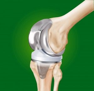 3/21: Modern technology helping Charlotte: knee replacement