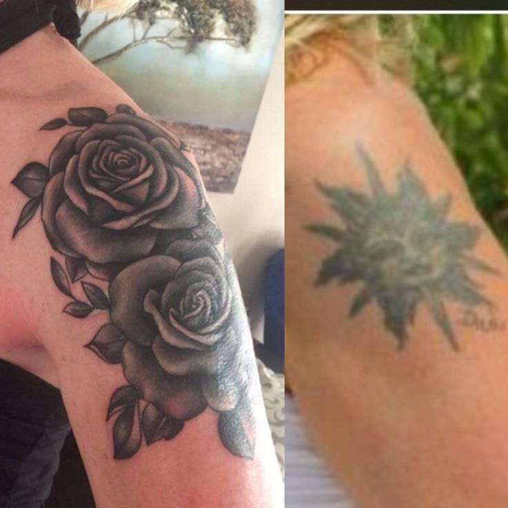 Before and after shoulder tattoo. Cover up tattoo. Rose tattoo.