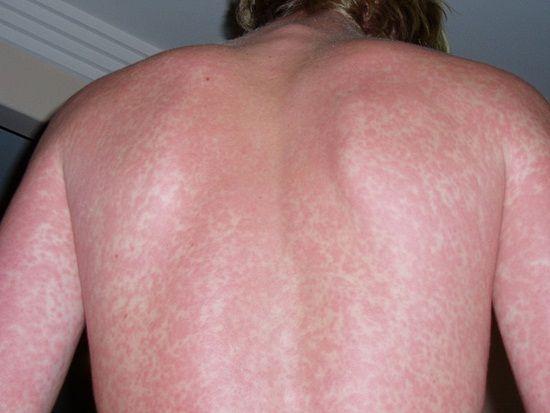 Soy oil skin allergies