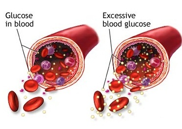 How To Control High Blood Sugar With Diet