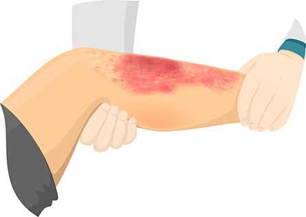 Pictures of cellulitis infection: illustration of doctor examining leg with cellulitis.    Related...