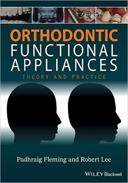 35 best dental ebooks images on pinterest free ebooks ebook pdf orthodontic functional appliances ebook pdf free download theory and practice edited by padhraig fleming and robert fandeluxe Images