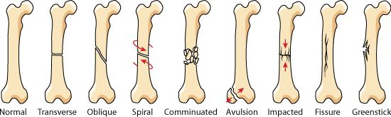 types of bone fractures and treatment | there are eight main shapes or kinds of bone fractures