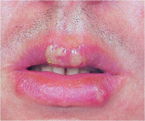 how to get rid of herpes on lips quickly