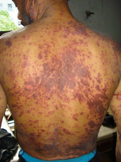 HIV severe symptoms | Acute Hiv Skin Rash