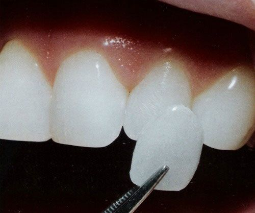 Porcelain Veneers Make Your Smile Shine!