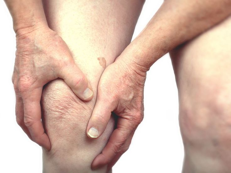 Home remedies for bursitis include usage of mullein tea, chamomile, skullcap and hops, lobelia oil, honey, apple cider vinegar, ginger, alfa alfa, castor oil, sesame oil, olive oil, lavender oil, potato, sandalwood, cayenne pepper, vitamin E oil, emu oil etc in different forms. Even stretching exercises are a good home based cure for this ailment. Bursitis refers to an inflammation of bursa or joints. This is due to bruising, continuous rubbing, overuse or excessive pressure over the bursa…