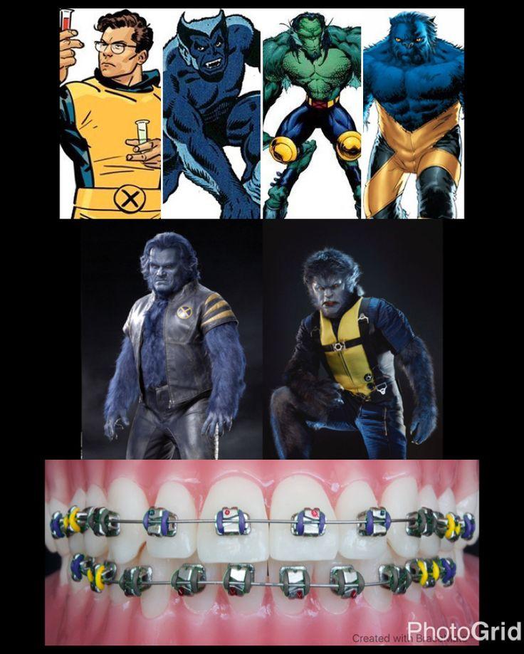 #Marvel mondays #Beast #hankmccoy #xmen #Mutant #Mutants #orthodontics #orthodontist #braces #ортодонт #ортодонтия #brackets  #ortodoncia #ortodontia #ortodontista #ortodoncista #marvelcomics #marveluniverse #colour #bracescolors #cosplay  #xmen #xmenapocalypse #kelseygrammer #nicholashoult