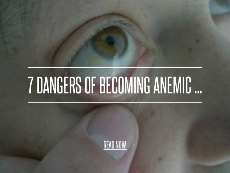 7 Dangers of Becoming Anemic ... - Health [ more at http://health.allwomenstalk.com ] Being anemic can be extremely dangerous. The type of danger you may face depends largely on the type of anemia you have. The six types of anemia include sickle cell, iron deficiency, thalassemia, vitamin deficiency, aplastic anemia and anemia caused by chronic diseases. The common dangers of becoming anemic are as follows.... #Health #And #Pressure #Anemia #Of #Low