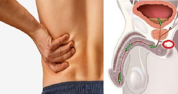 Estos son los 12 síntomas del cáncer de próstata más comunes y que jamás deberías ignorar. ¡¡Conoce cómo advertir las primeras señales!!