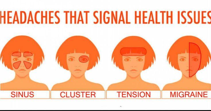 Ovo su najopasniji tipovi glavobolja, koje NIKADA ne smete zanemariti. Evo i zašto!