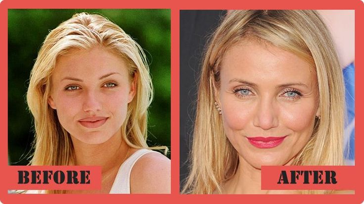 cameron diaz plastic surgery before and after Cameron Diaz Plastic Surgery #CameronDiazPlasticSurgery #CameronDiaz #celebritypost