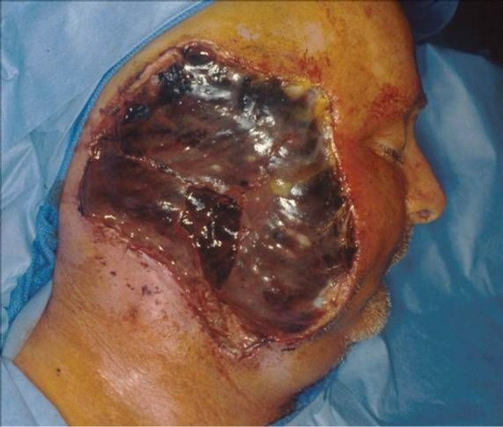 Natural Cure For Squamous Cell Carcinoma