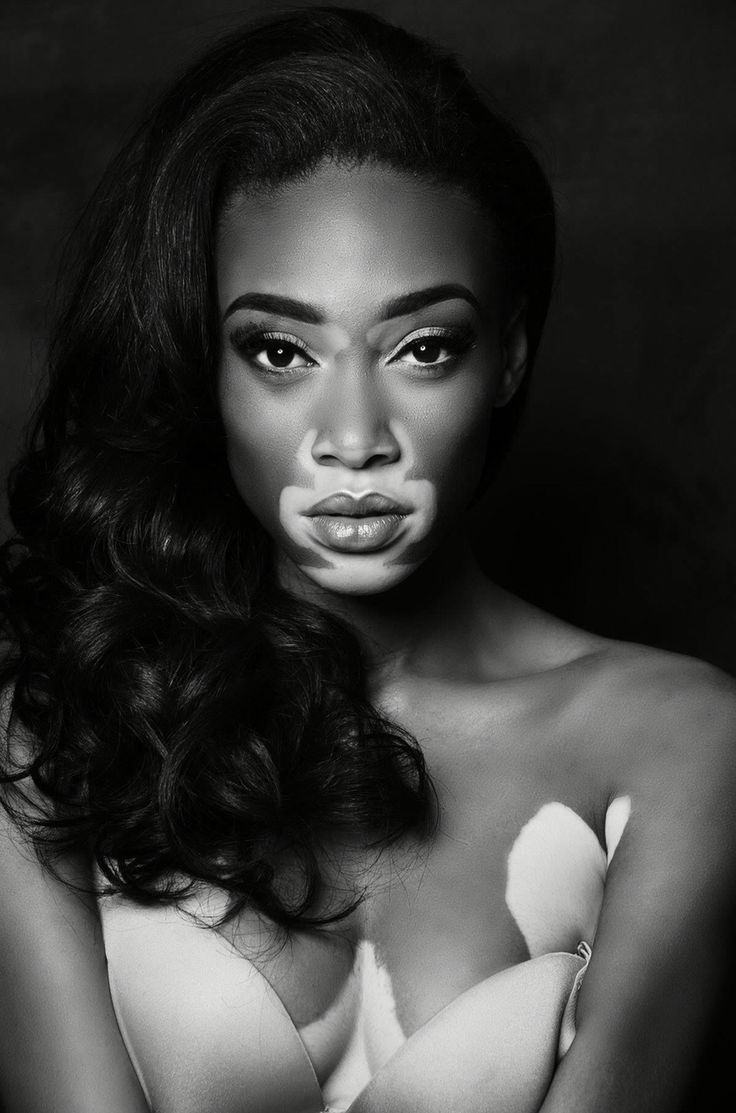 Winnie Harlow is changing beauty standards cnn.it/1JX4mg9
