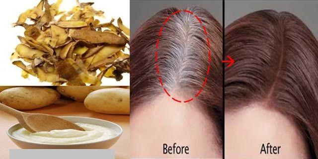 Patates Kabuğu ile Saç Detoksu Saç Beyazlamasını Önlemek İçin Ev Yapımı Bitkisel 4 Formül  – 5 adet patatesi alın ve kabuklarını soyun. Kabuklarını bir kabın içine yerleştirin.