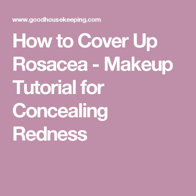 How to Cover Up Rosacea - Makeup Tutorial for Concealing Redness
