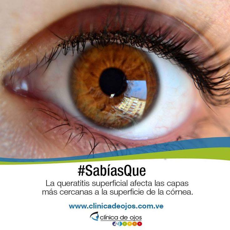#SabíasQue La queratitis superficial afecta las capas más cercanas a la superficie de la córnea.