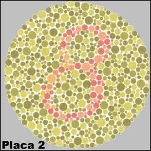 Figura do teste de Ishihara, método utilizado para diagnosticar o daltonismo. O teste de cores de Ishihara é um teste para detecção do daltonismo. Recebeu esse nome devido ao Dr. Shinobu Ishihara (1879 – 1963), um professor da Universidade de Tóquio, que foi o criador desses testes em 1917. O exame consiste na exibição de …
