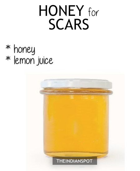 HONEY ACNE REMEDY Mix 1 tsp of nutmeg with 2 tbsp ofhoney and use it as a face mask or just dab a small amount of honey as a spot treatment and lave it on overnight. The antibacterial properties of both honey and nutmeg are beneficial for acne-prone skin. DIY honey face washfor acne free …