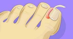Mira lo fácil que es tratar las uñas encarnadas en casa. ¡Sin tener que recurrir a cirugía!