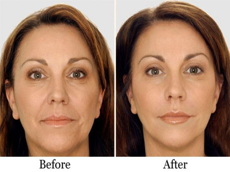 Plastic Surgery Before And After Face Images Liquid Facelift San Francisco  | Liquid Face Lift Surgeon