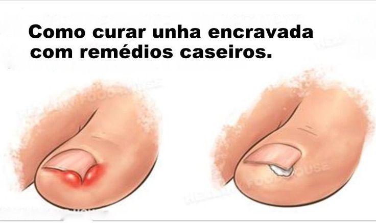 Thumb 5 REMÉDIOS CASEIROS PARA VOCÊ CURAR UNHA ENCRAVADA RAPIDAMENTE!