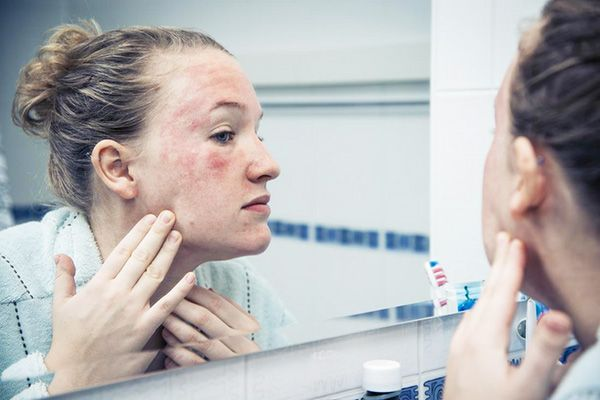 Sun Poisoning: Causes, Symptoms, Treatment and Prevention - https://healthiestfoodchoice.com/sun-poisoning-causes-symptoms-treatment-and-prevention/