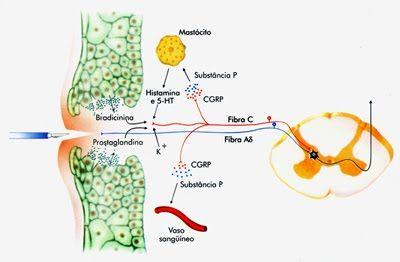 Quando um bisturi fere a pele ativa diretamente as fibras da dor rápida (azul) e indiretamente a da dor lenta (vermelho). Nesse último caso, as células lesadas os mastócitos do sangue e os próprios terminais nervosos secretam substâncias que geram uma relação inflamatória local. Lent. Roberto. Cem bilhões de neurônios: conceitos fundamentais de neurociência.