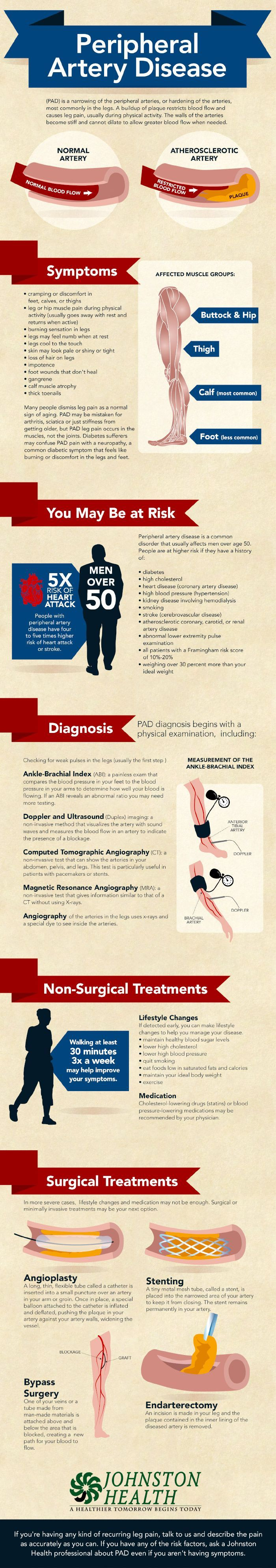 Infographic showing risk factors and symptoms of peripheral artery disease.