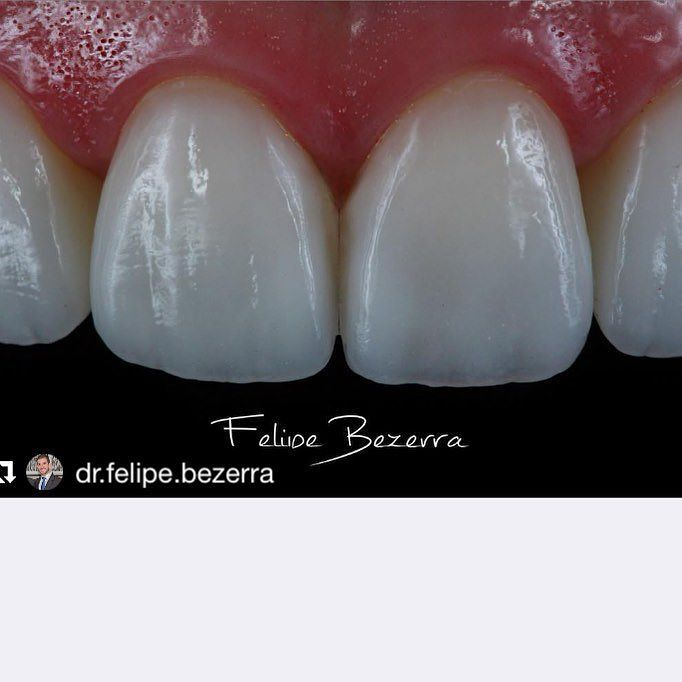 The goal of any treatment is always to establish a biologically compatible dentition that is esthetically acceptable to the patient. Amazing photo by @dr.felipe.bezerra with @repostapp. LENTES DE CONTATO DE PORCELANA (73) 3617-0707 #transformaçãodosorriso #bezerraodontologia #dentalphotographgroup #spaodontologico #spaday #odontologiadealtaperformance #lentesdecontatodental #facetasdeporcelana #facetasemresinacomposta #muitoalemdosdentes #odontologiaestetica #estetica #cirurgiaplastica…